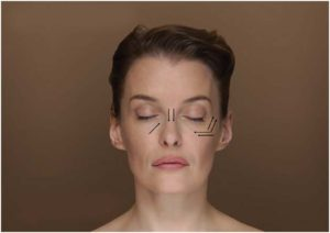 Eye wrinkles, Nasal dorsum base lifting